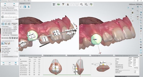 3Shape Orthodontic software with IDB bracket workflow