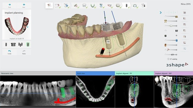 3Shape Implant Studio featuring edentulous treatment