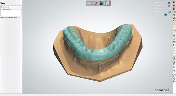 3Shape's new Splint Designer™ CAD software opens new business