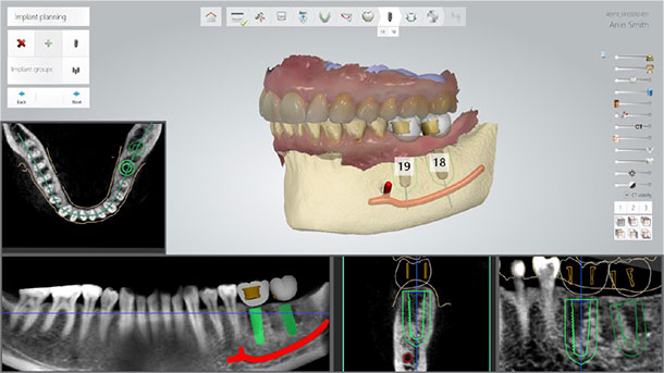 evaluating bone density and nerve positions in dentistry